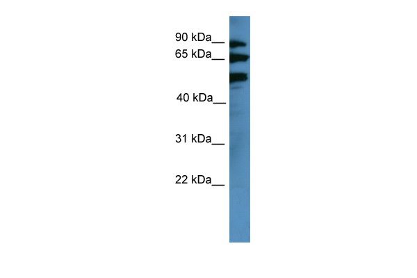 BBS2 antibody - middle region (ARP59751_P050) in Human COLO205 cells using Western Blot