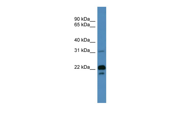 BASP1 antibody - N-terminal region (ARP59933_P050) in Human Muscle cells using Western Blot