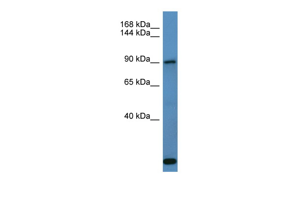 COL27A1 Antibody - middle region (ARP60008_P050) in Human Fetal Lung cells using Western Blot