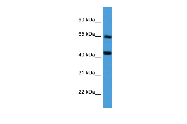 COL8A2 antibody - middle region (ARP60023_P050) in Human Liver cells using Western Blot