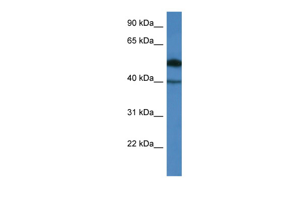 C9orf64 antibody - N-terminal region (ARP60394_P050) in Human COLO205 cells using Western Blot
