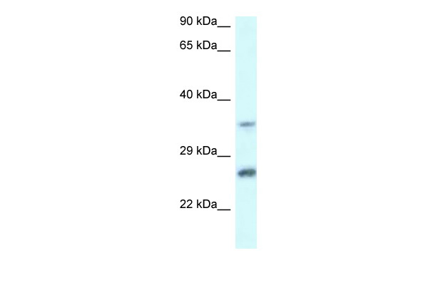 CBR4 antibody - C-terminal region (ARP60664_P050) in Human MCF-7 cells using Western Blot