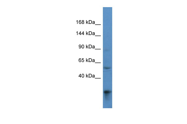 ACAD10 Antibody - C-terminal region (ARP60785_P050) in Human 293T cells using Western Blot
