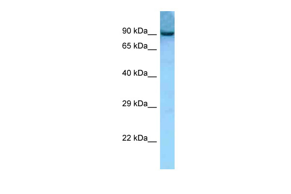 Aacs antibody - middle region (ARP60814_P050) in Mouse Thymus cells using Western Blot