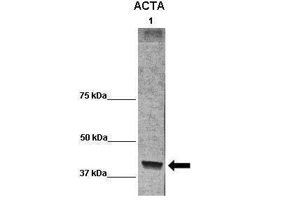 ACTA1 antibody - C-terminal region (ARP60968_P050) in baboon muscle homogenate cells using Western Blot