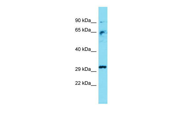 Casp3 Antibody - middle region (ARP60988_P050) in Mouse Liver cells using Western Blot