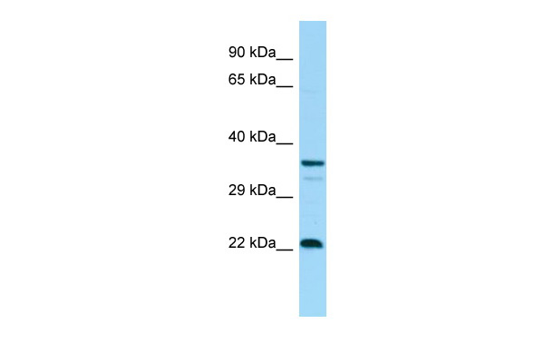 CD83 Antibody - C-terminal region (ARP61130_P050) in Human Fetal Thymus cells using Western Blot