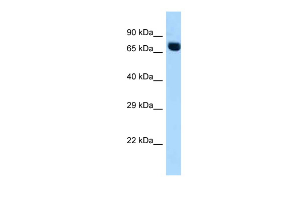 ACSS2 antibody - C-terminal region (ARP61138_P050) in Human Fetal heart cells using Western Blot