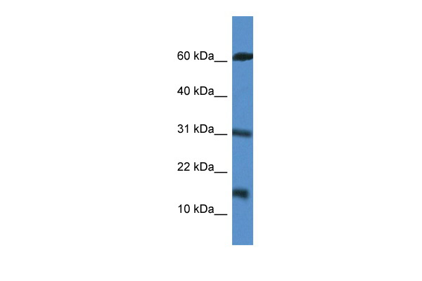 CARD17 antibody - middle region (ARP61219_P050) in Human Jurkat cells using Western Blot