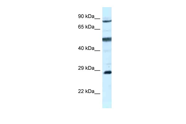 AK7 antibody - C-terminal region (ARP61866_P050) in Human MCF-7 cells using Western Blot