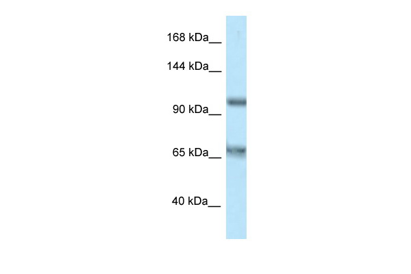 CARD10 antibody - C-terminal region (ARP61870_P050) in Human HT1080 cells using Western Blot