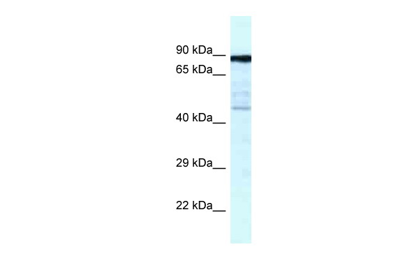 CKAP2 antibody - C-terminal region (ARP61929_P050) in Human Fetal Lung cells using Western Blot