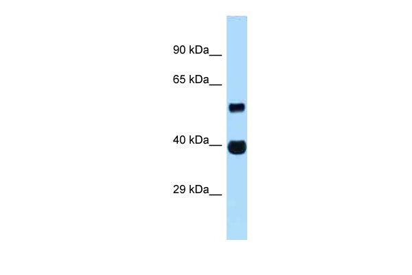 ASB4 antibody - middle region (ARP62054_P050) in Human Fetal heart cells using Western Blot