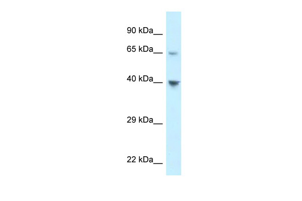 CCRL1 antibody - C-terminal region (ARP62099_P050) in Human 293T cells using Western Blot