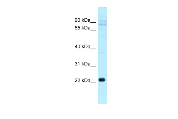 CLEC5A antibody - C-terminal region (ARP62114_P050) in Human THP-1 cells using Western Blot