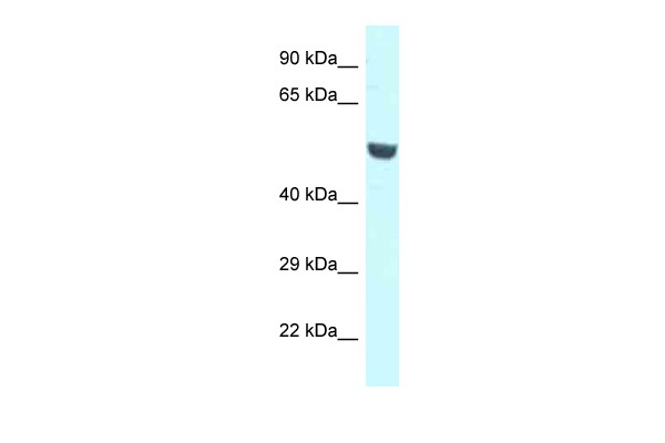 CNKSR1 Antibody - middle region (ARP62218_P050) in Human A549 cells using Western Blot