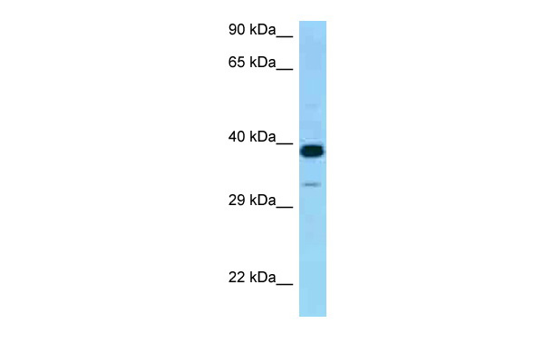 CRELD2 antibody - middle region (ARP62266_P050) in Human 721_B cells using Western Blot
