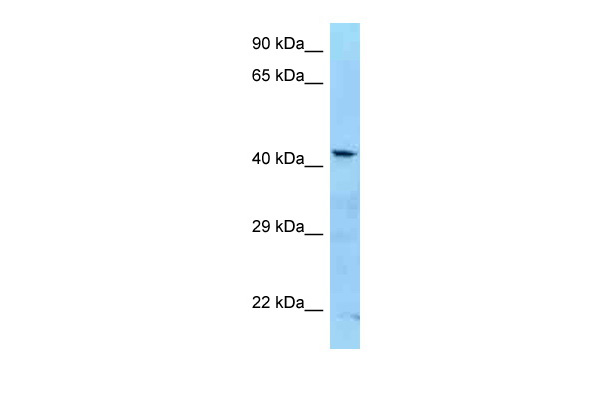 ADAT3 antibody - C-terminal region (ARP62424_P050) in Human Jurkat cells using Western Blot