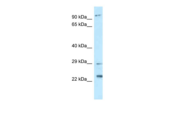 C17orf70 antibody - N-terminal region (ARP62554_P050) in Human Placenta cells using Western Blot