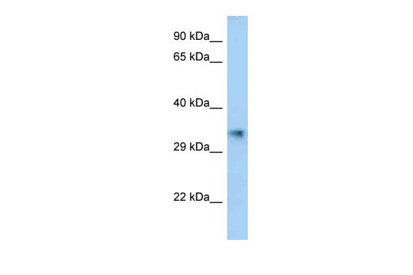AKR1E2 antibody - C-terminal region (ARP62958_P050) in Human Fetal Lung cells using Western Blot