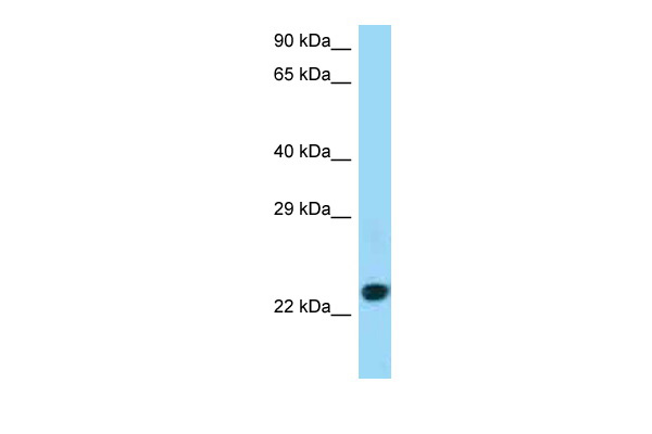 CD86 antibody - C-terminal region (ARP63007_P050) in Human Jurkat cells using Western Blot