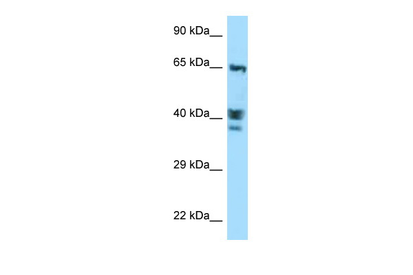 ACTL8 antibody - C-terminal region (ARP63129_P050) in Human MCF-7 cells using Western Blot