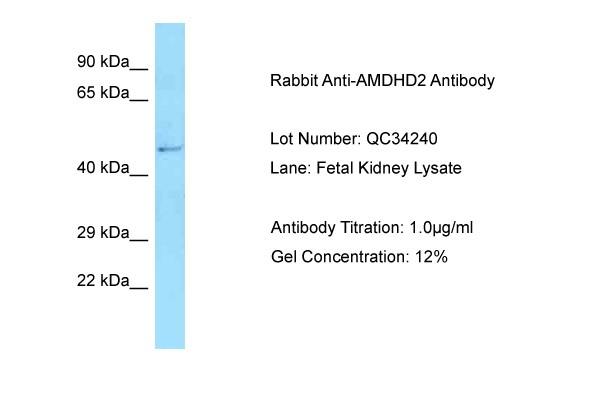 AMDHD2 antibody - N-terminal region (ARP63138_P050) in Fetal Kidney cells using Western Blot