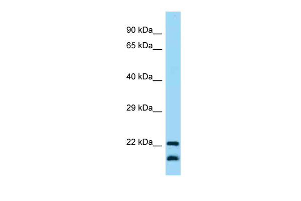 CD200 Antibody - C-terminal region (ARP63445_P050) in Human Fetal Lung cells using Western Blot