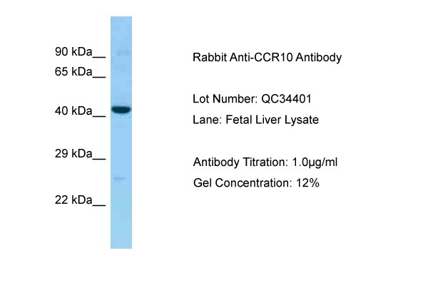 CCR10 antibody - middle region (ARP63519_P050) in Human Fetal Liver cells using Western Blot