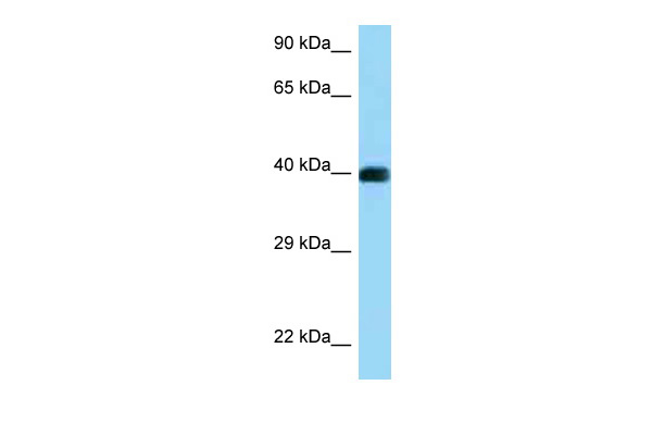 CD72 antibody - C-terminal region (ARP63535_P050) in Human Jurkat cells using Western Blot