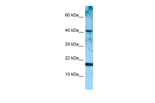 ARTN antibody - middle region (ARP63920_P050) in Human MCF-7 cells using Western Blot