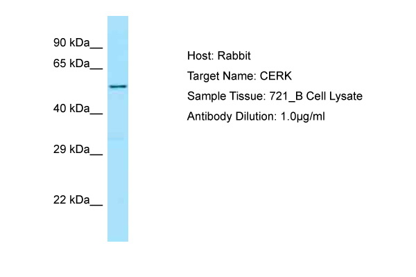 CERK Antibody - C-terminal region (ARP64125_P050) in Human 721_B cells using Western Blot