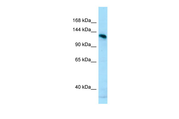 AMPD2 Antibody - N-terminal region (ARP64642_P050) in Human MCF-7 cells using Western Blot