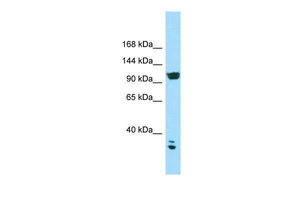 CACNA2D2 Antibody - C-terminal region (ARP64646_P050) in Human HCT15 cells using Western Blot
