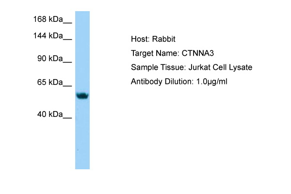 CTNNA3 Antibody - N-terminal region (ARP64688_P050) in Jurkat cells using Western Blot
