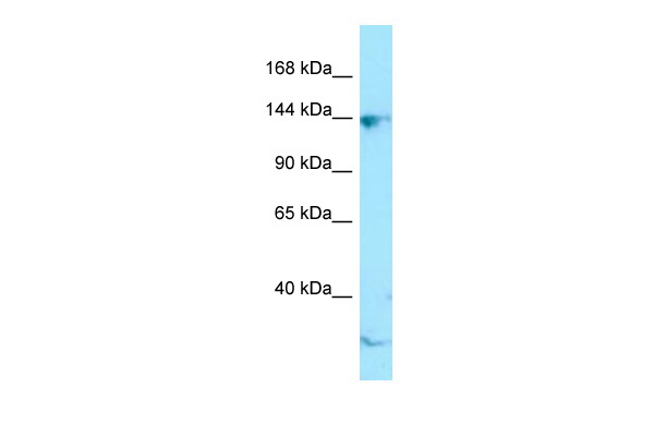 CTR9 antibody - C-terminal region (ARP64690_P050) in Human Jurkat cells using Western Blot