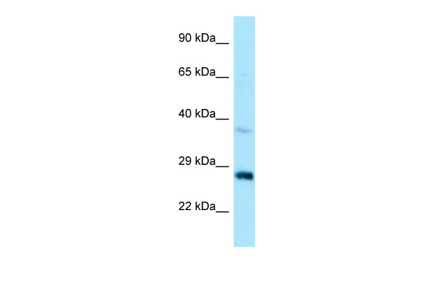 CTDSP1 Antibody - N-terminal region (ARP65072_P050) in Human HepG2 cells using Western Blot