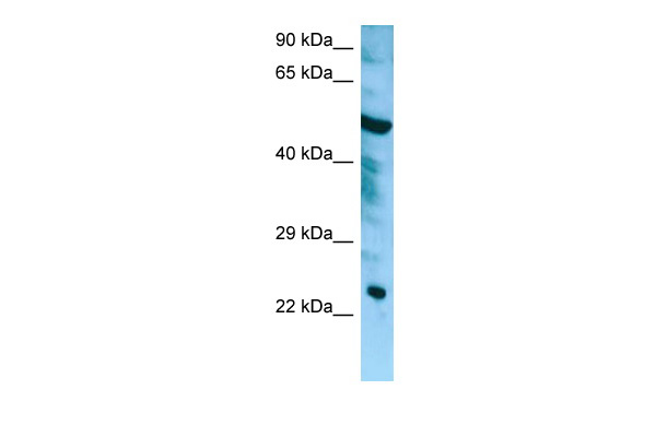 CHMP6 Antibody - middle region (ARP65538_P050) in Human HepG2 cells using Western Blot
