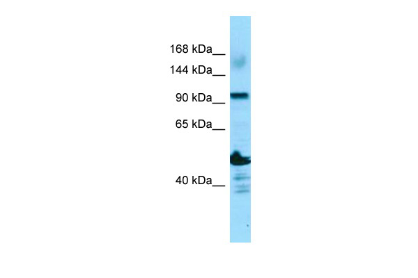 ADAMTS14 Antibody - N-terminal region (ARP65731_P050) in Human OVCAR-3 cells using Western Blot