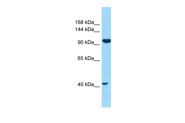 CILP2 Antibody - N-terminal region (ARP66767_P050) in Human COLO205 cells using Western Blot