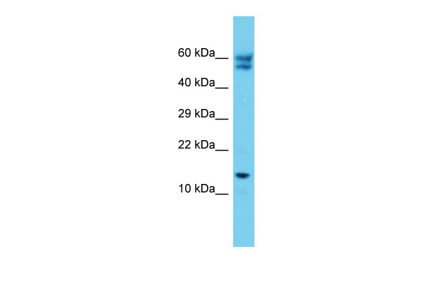 C12orf65 Antibody - C-terminal region (ARP68112_P050) in Human Jurkat cells using Western Blot