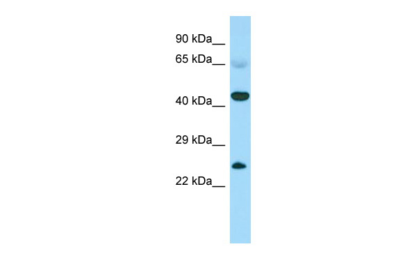 CABS1 Antibody - N-terminal region (ARP68160_P050) in Human Fetal heart cells using Western Blot