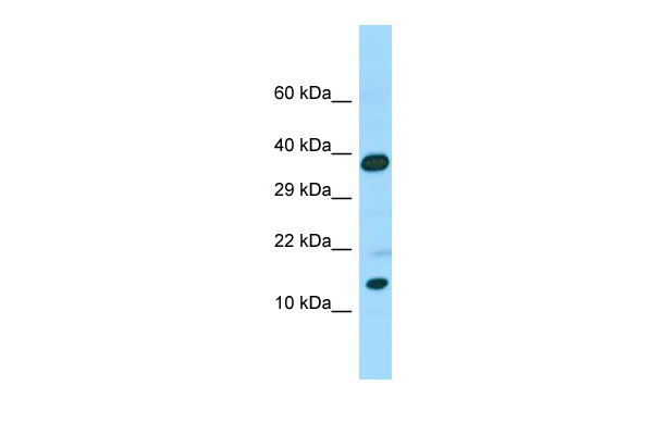 CALML6 Antibody - C-terminal region (ARP68163_P050) in Human Placenta cells using Western Blot