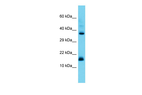 CNPY2 Antibody - middle region (ARP68229_P050) in Human Placenta cells using Western Blot