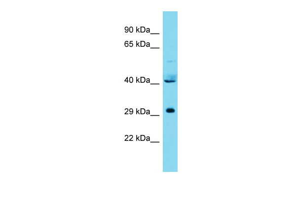 CPSF3L Antibody - C-terminal region (ARP68235_P050) in Human 721_B cells using Western Blot