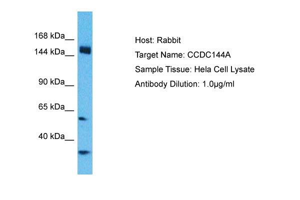 CCDC144A Antibody - C-terminal region (ARP68520_P050) in Human Hela cells using Western Blot
