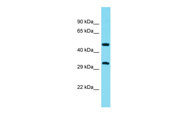 ABHD10 Antibody - middle region (ARP68719_P050) in Human THP-1 cells using Western Blot