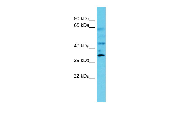 C6orf106 Antibody - C-terminal region (ARP68810_P050) in Human Fetal Kidney cells using Western Blot
