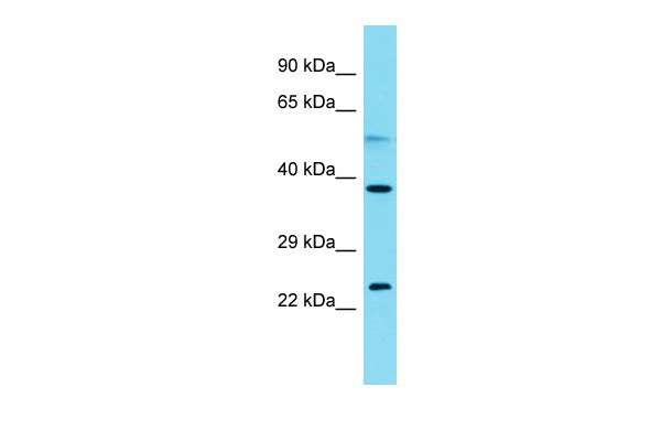 C2orf44 Antibody - C-terminal region (ARP68955_P050) in Human Jurkat cells using Western Blot