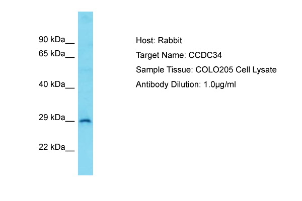 CCDC34 Antibody - C-terminal region (ARP69109_P050) in Human COLO205 cells using Western Blot